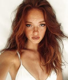 17 Insanely Stunning People Who Prove Freckles Are Really Beautiful