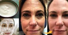 Thousands of Women Are Using This Homemade Cream to Rejuvenate Their Facial Skin and Get Rid of Wrinkles! You Will Look 10 Years Younger Overnight (RECIPE) Ride Du Lion, Lemon Juice Face, Lemon Face, Beauty Care, Beauty Hacks, Wrinkle Remedies, The Face, Les Rides, Face Skin Care