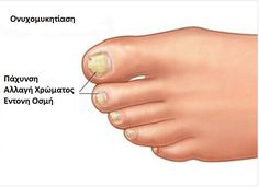 Bilimsel adı onikomikoz olan tırnak mantarı tırnağın renk ve kalınlığı… The nail fungus, whose scientific name is onychomycosis, affects the appearance of the nail by changing its color and thickness. Doterra, Image Nails, Ingrown Toe Nail, Nail Plate, Fungal Infection, Gel Designs, Nail Fungus, Healthy Nails, Artificial Nails