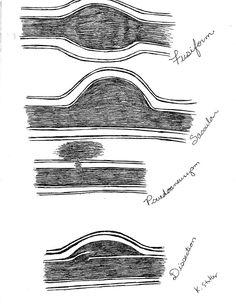 Arterial pathology