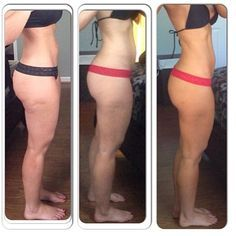 Proven ways to get rid cellulite