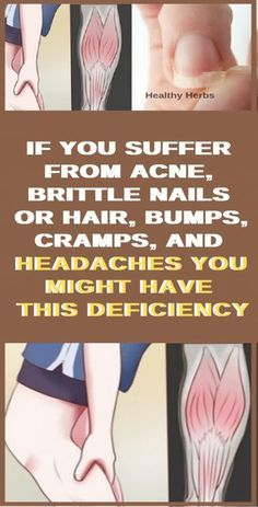 You may not know this fact, but different health problems can be caused by different vitamin and mineral deficiencies. So in case you suffer from acne or you have headaches and brittle nails, here. Biotin For Hair Loss, Oil For Hair Loss, Hair Loss Shampoo, Biotin Hair, Baby Hair Loss, Stop Hair Loss, Prevent Hair Loss, Make Up Tutorials, Tongue Health