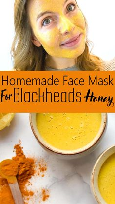 What Homemade Face Mask Is Best For Acne - I enjoy discovering and spreading DIY beauty tips, specifically all-natural solutions you can easily make at Pore Mask, Blackhead Mask, Skin Mask, Blackhead Remedies, Homemade Face Masks, Diy Face Mask, Greasy Skin, Oily Skin