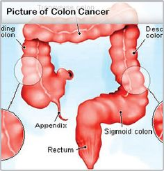 Picture of Colon Cancer