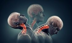 Neck arthritis, or cervical facet osteoarthritis, can result in radiating pain and difficulty moving. Learn about the symptoms and treatment options available. Neck Arthritis, Rheumatoid Arthritis Treatment, Neck Problems, Health Problems, Neck Injury, Accident Injury, Chiropractic Care, Neck Pain, Sore Neck