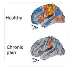 #Pain fundamentally alters your #brain. #ChronicPain changes the brain. Sean Mackey, MD, PhD Dr Margaret Aranda Etienne Arsenault #MD #doc #Patient #BackPainDay2016