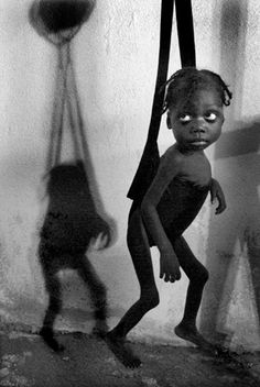 A handout photograph taken by Miami Herald photographer Patrick Farrell that won the Pulitzer Prize for Breaking News Photography announced by the Pulitzer Prize Board in New York April 20, 2009. Four-year-old Venecia Lonis, now 16 pounds after two weeks of care, shown Nov. 21, 2008, was so malnourished when she first reached a clinic in Martissant, Haiti, that her mother was planning her funeral.