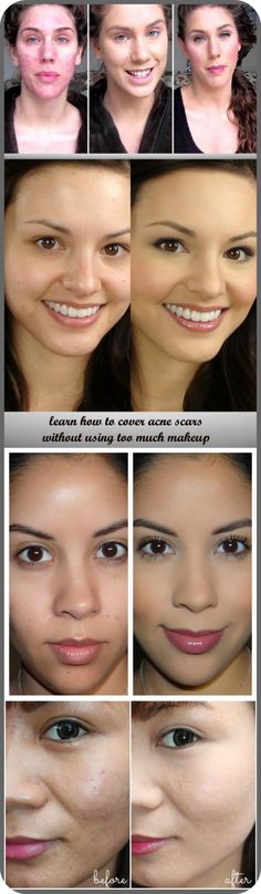 See directions about how to cover acne scars without using too much makeup. Makeup Tips, Beauty Makeup, Hair Beauty, Beauty Secrets, Beauty Hacks, Beauty Tips, Types Of Acne, Too Much Makeup, Best Acne Treatment