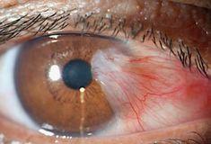 Cuando sepas cómo puedes mejorar tu vista y eliminar las carnosidades que se forman en los ojos de forma natural y rápida, quedaras tan impresionado como yo. La vista es uno de los órganos más importantes que tiene el cuerpo, así como también uno de lo más delicados y susceptibles, por eso requieres de mucho …