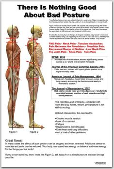 Anatomy of Poor Posture Poster. Tension Headache, Bad Posture, Knee Pain, Wellness Fitness, Massage Therapy, Physical Therapy, Back Pain, Sport, Motivation