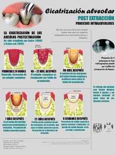Mouth care is an area in nursing that seems to have a low priority (Griffiths and Boyle, Dental Hygiene Student, Dental Hygienist, Dental Care, Implant Dentistry, Cosmetic Dentistry, Dental Implants, Dental Health Month, Oral Health, Restorative Dentistry