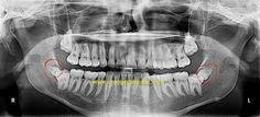 Supernumerary Teeth | Calcaterra Family Dentistry | Extra Tooth Orange