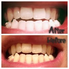 1 cup baking soda + 1/2 fresh squeezed lemon Mix and apply to every tooth with a q-tip. Let sit for 1 minute. Rinse. Apply another time, but lightly brush your teeth to remove stains.