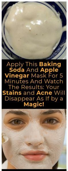 APPLY THIS BAKING SODA AND APPLE VINEGAR MASK FOR 5 MINUTES AND WATCH THE RESULTS: YOUR STAINS AND ACNE WILL DISAPPEAR AS IF BY A MAGIC! | Fitness Experts Club