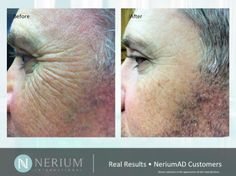 Skin Care for Men {Nerium Night Cream}. My husband has crows feet and uses Nerium with no shame. Men don't want wrinkles either. www.erinwilliamson.nerium.com