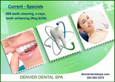 Denver dental spa is giving offers on various dental treatments like teeth cleaning, teeth whitening, X-RAY and more. With free teeth whitening trays and whitening strips.