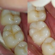 Tooth 46 class I restoration #directcomposite #directrestoration #odontolgia #odonto #resincomposite #dentist #dentistry by anitacarolinee Our General Dentistry Page: http://www.myimagedental.com/services/general-dentistry/ Google My Business: https://plus.google.com/ImageDentalStockton/about Our Yelp Page: bit.ly/1KZUPer Our Facebook Page: https://www.facebook.com/MyImageDental Image Dental 3453 Brookside Road Suite A Stockton CA 95219 (209) 955-1500 Mon - Fri: 8am - 5pm…