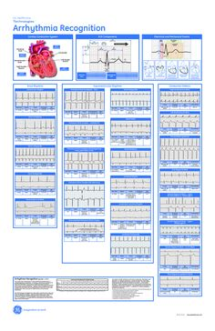 Cardiac Dysrhythmia | scope of work template