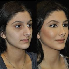 · · · One of our beautiful patients before and after and . surgery rinoplastia · · · One of our beautiful patients before and after and . Nose Plastic Surgery, Plastic Surgery Procedures, Celebrity Plastic Surgery, Nose Surgery, Plastic Surgery Before After, Nose Reshaping, Rhinoplasty Before And After, Rhinoplasty Surgery, Liposuction