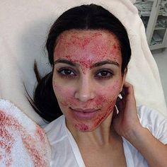 Kim Kardashian's Bloody Vampire Facial — Is This Nuts? Vote Get the latest news on Kim Kardashian Kim Kardashian, Kardashian Memes, Facial Treatment, Skin Treatments, Plasma Facial, Dermapen Microneedling, Vampire Facial, Derma Roller, Beauty Hacks