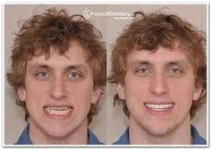 If you want to give perfect shape to your jaws #preplessPorcelainVeneers a painless surgery is in practice at Dr Sam Muslin's Dentistry.To access more go to the provided link.  #preplessPorcelainVeneers