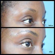 #lifejustgoteasier  #browtattoo #hairstrokes #microblading #cosmetictattoo…