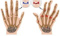 Elimina los dolores ocasionados por la artritis consumiendo jengibre rallado.
