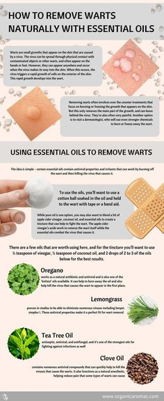 How To Remove Warts Naturally with Essential Oils #OrganicAromas