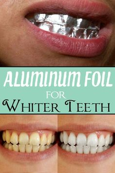 A beautiful smile completely changes your physiognomy and gives you more self- confidence. See how you can whiten your teeth at home without spending huge amounts.