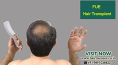 #FUE #HairTransplant Technique is avalable at affordable price in #Hairnsenses www.sta.cr/2lFG1