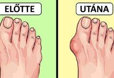 10 ok, hogy azonnal kidobd a flip-flop papucsodat az egészséged érdekében Flipping, Flip Flops, Fitness, Sport, At Home Workouts, Creative, Deporte, Sports, Beach Sandals
