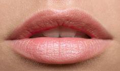Ácido Hialurónico Labios Relleno