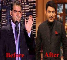 hair transplant in ludhiana punjab india