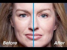 LIFT INSTANT?Facem masca crema cu efect de lifting,antirid,antiage Cosmetics, Recipe, Hair Styles, Youtube, Beauty, Mascaras, Cream, Hair Plait Styles, Hair Makeup