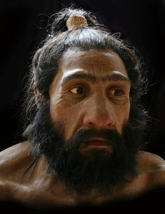Neanderthal and Denisovan genomes are revealing which regions of archaic hominin DNA have persisted in the modern human genome. A number of these regions are associated with response to infection and immunity, with a suggestion that derived Neanderthal alleles found in modern Europeans and East Asians may be associated with autoimmunity. Hominini