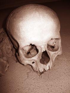Skull. by Herbalhim.deviantart.com