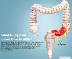8 Gambar Digestive System Terbaik Sigmoid Colon