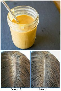 Home Remedies to Reverse Grey Hair Naturally