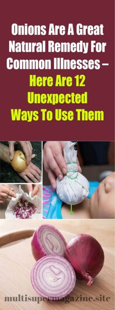 Remedies For Health Onions Are A Great Natural Remedy For Common Illnesses – Here Are 12 Unexpected Ways To Use Them – Multi Super Magazine Holistic Remedies, Natural Health Remedies, Natural Cures, Herbal Remedies, Au Natural, Natural Healing, Natural Medicine, Herbal Medicine, Health And Wellness