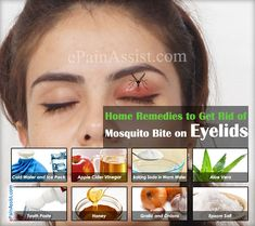 Home Remedies to Get Rid of Mosquito Bite on Eyelid