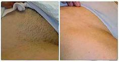bikini-area-hair-removal http://besthairremovals.com/best-hair-removal-guide/hair-removal-products-review/braun-silk-electric-hair-removal-epilator/