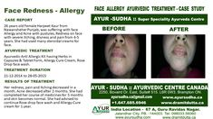 Skin allergy, Face allergy, Sun Rays allergy and other allergic conditions, Ayurvedic treatment at AYUR-SUDHA , Brampton Canada.