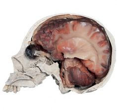 Plastinated brain in an open skull with a neural pathway specimen