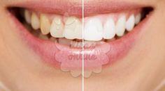 Incrível! Dentes mais brancos sem química! - # #branqueamento #cháverde #dentesbrancos