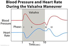 Valsalva maneuver is exhalation against a closed airway. It is used as a diagnostic and therapeutic aid and to equalize the pressure in the ears. Valsalva Maneuver, Study Biology, Doctor Office, Med School, Anatomy And Physiology, Blood Pressure, Definitions, Cardio, Nursing