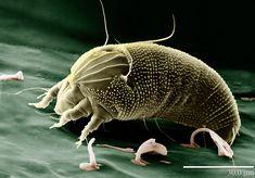 Existem cerca de 1,5 milhão de ácaros como o da imagem vivendo na sua cama (Foto: Wikimedia/Eric Erbe)