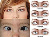Косоглазие является распространенным недугом сегодняшнего поколения. Многие люди щепетильно относятся к данной проблеме, поскольку кроме функциональных неудобств, появляется психологический дискомфорт и неуверенность в себе. Но с данным заболеванием можно бороться и побеждать его, самое главное вовремя взять проблему под контроль и обратиться к соответствующим специалистам за помощью.  #заболевание #косоглазие #глаза #зрение #лечение #медицина