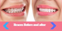 Searching for Braces Before and After ? do you want to learn how braces can…