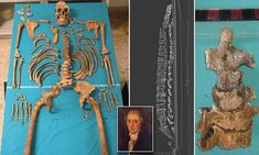 Remains of 19th century singer reveal effects of castration and opera