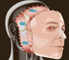 Changer d'identité : L'éthique de la transplantation de visage - chirurgie esthetique tunisie : l'Elegance Face Off, Transplantation, Plastic Surgery, Face